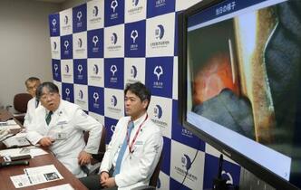 阪大、iPS心筋移植の治験開始