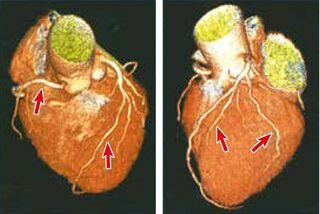 【放射線科編】がん検診と心疾患