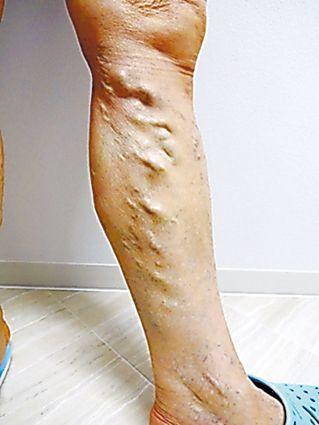 [血管内治療編]下肢静脈瘤