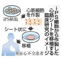 iPS細胞から作製した心筋シートを移植する臨床研究のイメージ