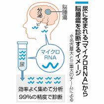 少量の尿から脳腫瘍診断 名古屋大…